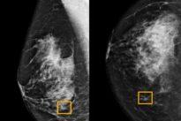 Selon Google, l'IA dépiste le cancer du sein mieux que l'humain